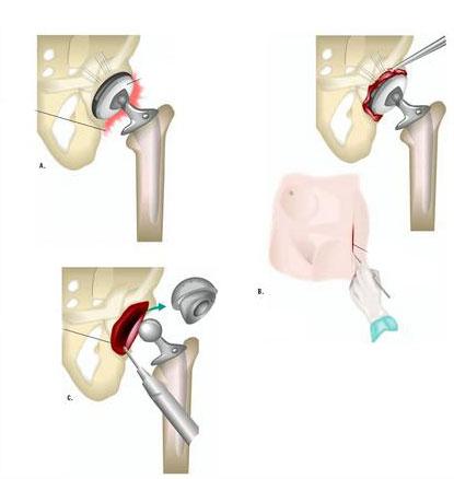 Удаление эндопротеза тазобедренного сустава тазобедренный сустав протез ценасамара